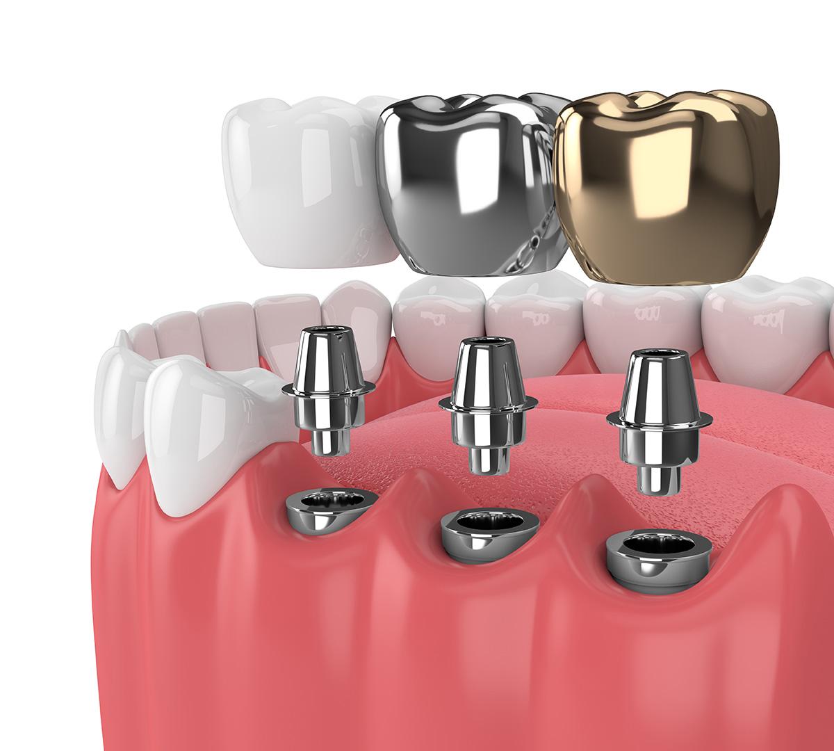 كل ما يتعلق بتركيب الأسنان بأنواعها وأشكالها المختلفة
