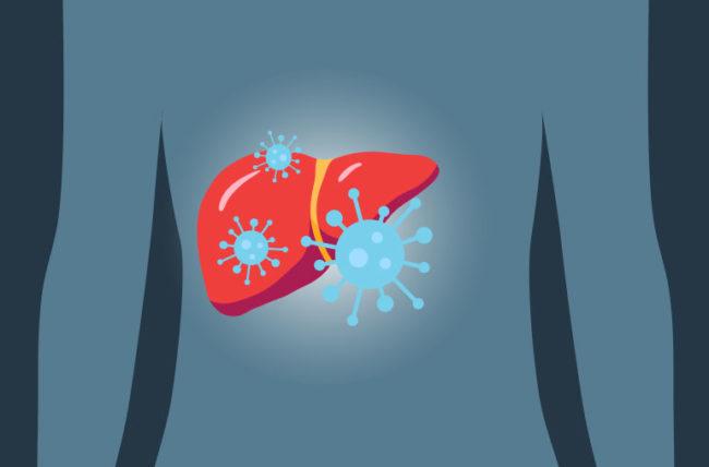 التهابات الكبد الفيروسية I أنواعها وأعراضها