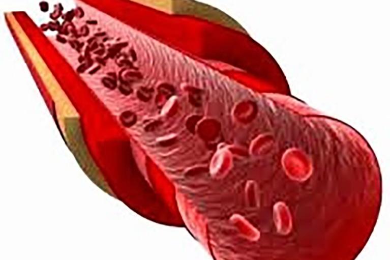 الكوليسترول: الأنواع، الفوائد، الأضرار، الأطعمة والوقاية