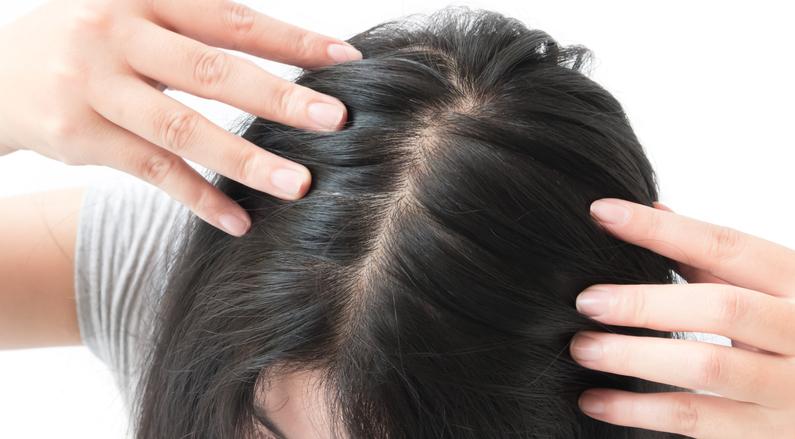 علاج التهاب فروة الرأس والحكة